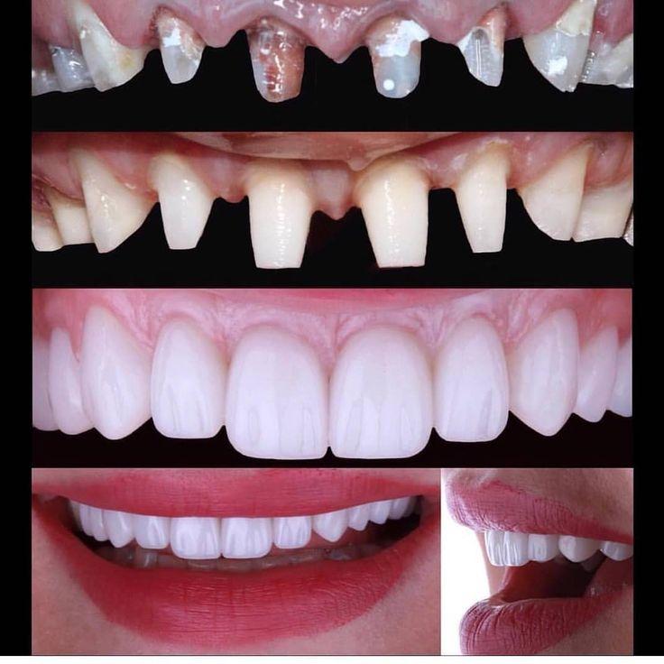 Dental Assistant Jobs Near Me 2019 Dental, Dental