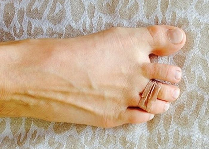 Hoy en la wikiguia te enseñaremos un truco que yo personalmente he usado para aliviar el dolor en los pies y la fascitis plantar, no te lo pierdas.