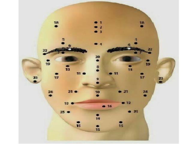 Mit jelentenek az arcodon az anyajegyek?