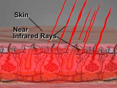 What is Far Infra Red? What is Negative Ions? What are the benefits to our health. These simple questions are answered in the condensed video clip. The good ...
