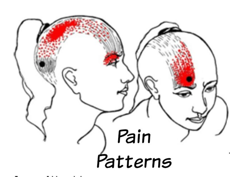 40 best images about Occipital Neuralgia on Pinterest ...