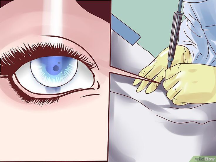 Lower Eye Pressure Without Drops   Eyes Eye exercises ...