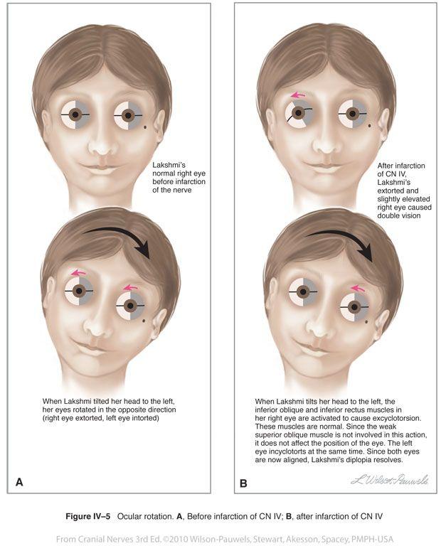 Ocular Amyloidosis