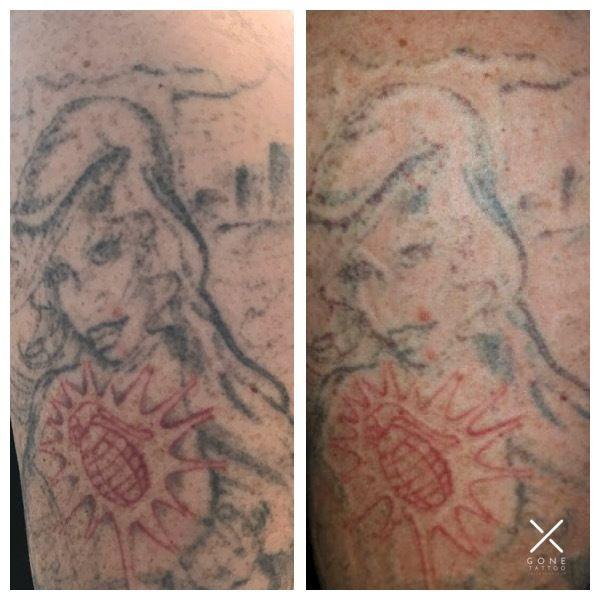 Before And After Of A Clients First Laser Tattoo Removal Session With Gone Tattoo They Did Have A Few Session Laser Tattoo Removal Tattoos Tattoo Removal Cost