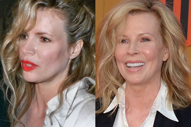 Has Kim Basinger Had Plastic Surgery Before And After