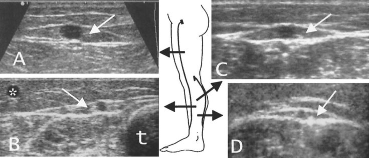 Sonography of the saphenous compartment (white arrows) along the great saphenous vein at the thigh (A) and at the leg (B) and along the small saphenous vein at the calf (C) and in the distal lower leg (D). Sonography clearly demonstrates that the saphenous veins are enwrapped by two hyperechoic fasciae. Note in B, the posterior accessory saphenous vein (*) and the tibia (t).