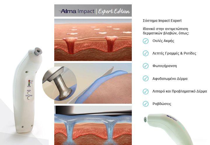 Το σύστημα Impact Expert® που βασίζεται στην ιδιότητες των εναλλασσόμενων ακουστικών υπερήχων, ενισχύει τη διαδερμική διείσδυση ενεργών συστατικών για ενισχυμένη αποτελεσματικότητα σε ένα ευρύ φάσμα δερματικών βλαβών.