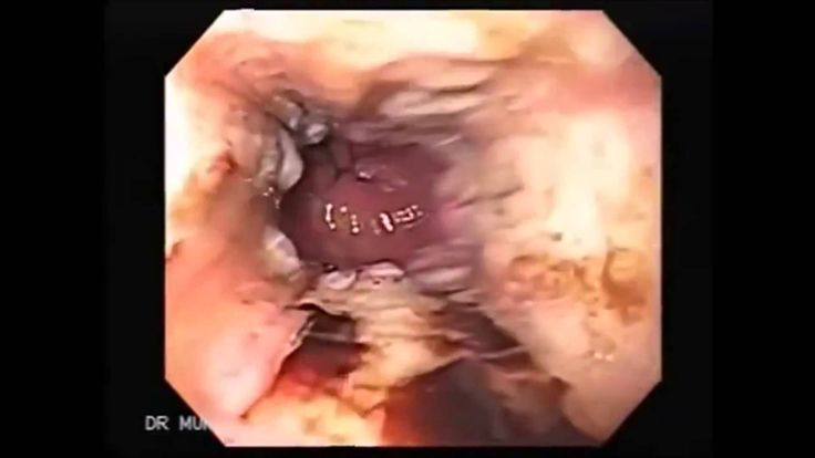 Food Ideas For Throat Cancer Patients