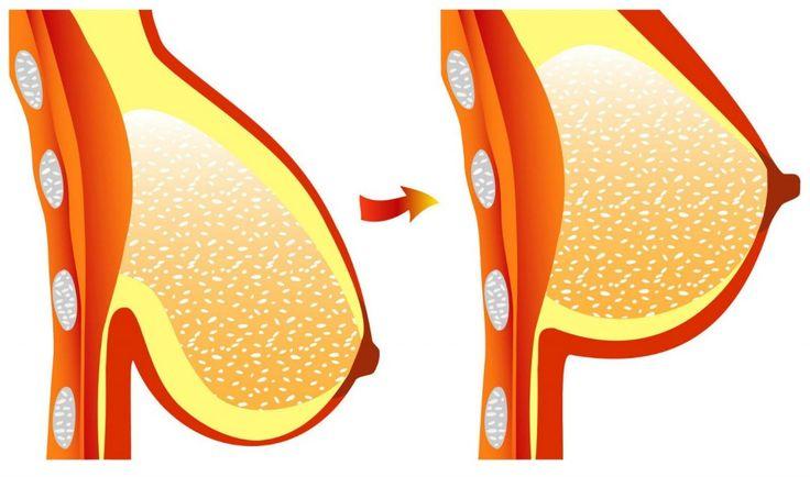 Toutes les femmes rêvent d'avoir une belle poitrine, mais certains facteurs ont parfois raison du maintien des seins et de l'élasticité de la peau. Il es