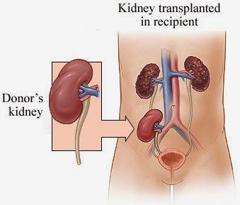 Kidney Transplantation-Pipeline Insights, 2014: Latest Market Research Available online at MarketResearchReports.Biz