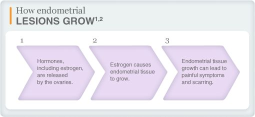 How endometrial lesions grow[1,2]: 1) Hormones, including estrogen, are released by the ovaries. 2) Estrogen causes endometrial tissue to gr...