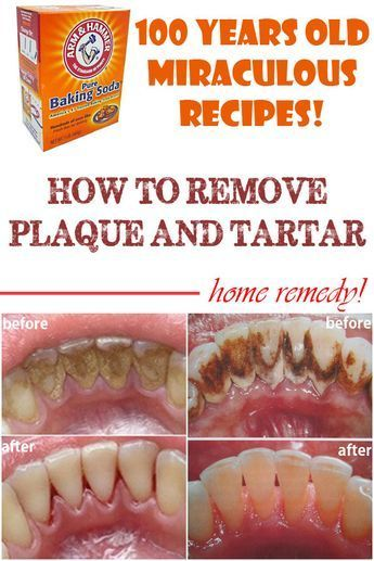 Due to a continual accumulation of minerals on the teeth and gum line, a soft and sticky deposit will appear and bother your teeth.See how to get rid of it! http://reviewscircle.com/health-fitness/dental-health/natural-teeth-whitening/