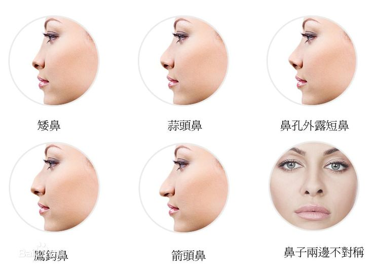 nose shapes and names - HD1127×772