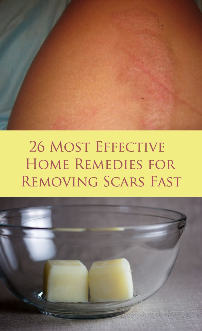 Common ingredients can remove scars if you use them in right way and at right time. Get the top 26 home remedies for acne scars or burn scars.