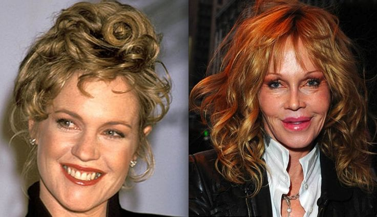 Melanie_Griffith-surgery-before-after