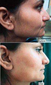 Homemade Facial Hair Removal Mask - AllDayChic
