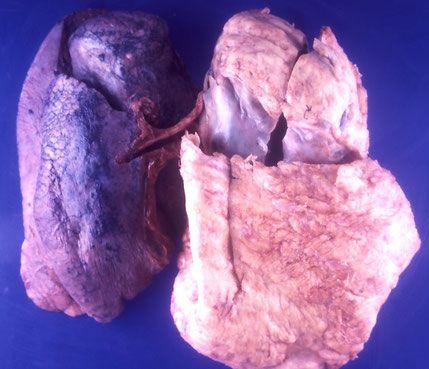 Asbestos Lung Mesothalioma
