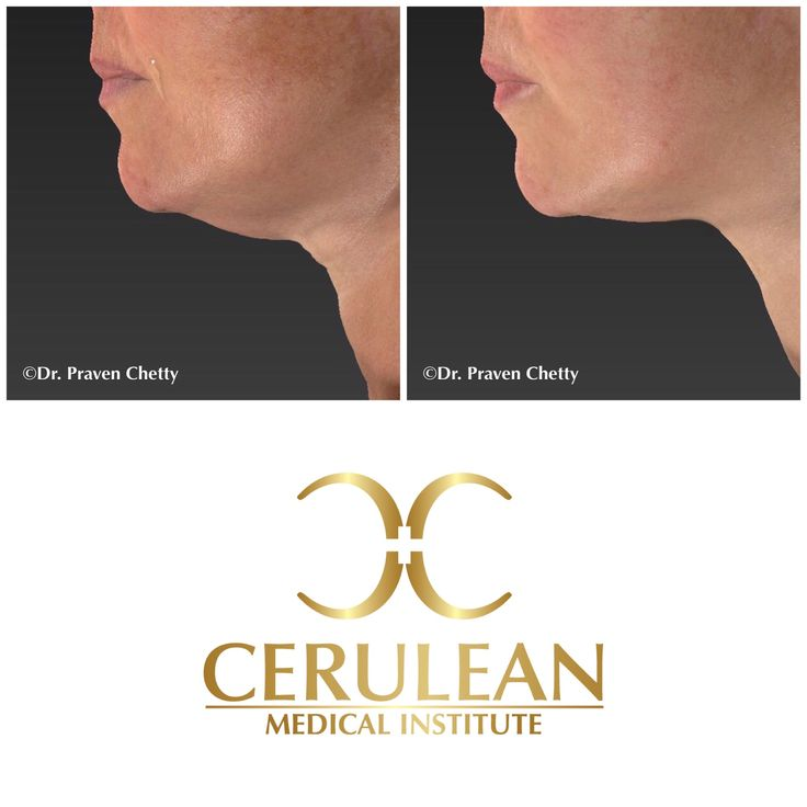 Submental fullness reduction before and after photo illustrating a youthful jawline from customized treatment of the lower face at Cerulean Medical Institute✨ #Youthful #Jawline #BeforeAndAfter #NonSurgical #Cosmetic #Dermatology #Facial #Sculpting #Contouring #CeruleanMedicalInstitute #DrPravenChetty #RealSelf #TopDoctor #Beautiful #Kelowna #Okanagan
