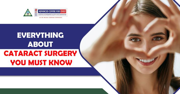 Everything about Cataract Surgery your Must Know