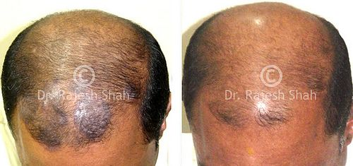 Natural Ways To Cure Psoriasis On The Scalp