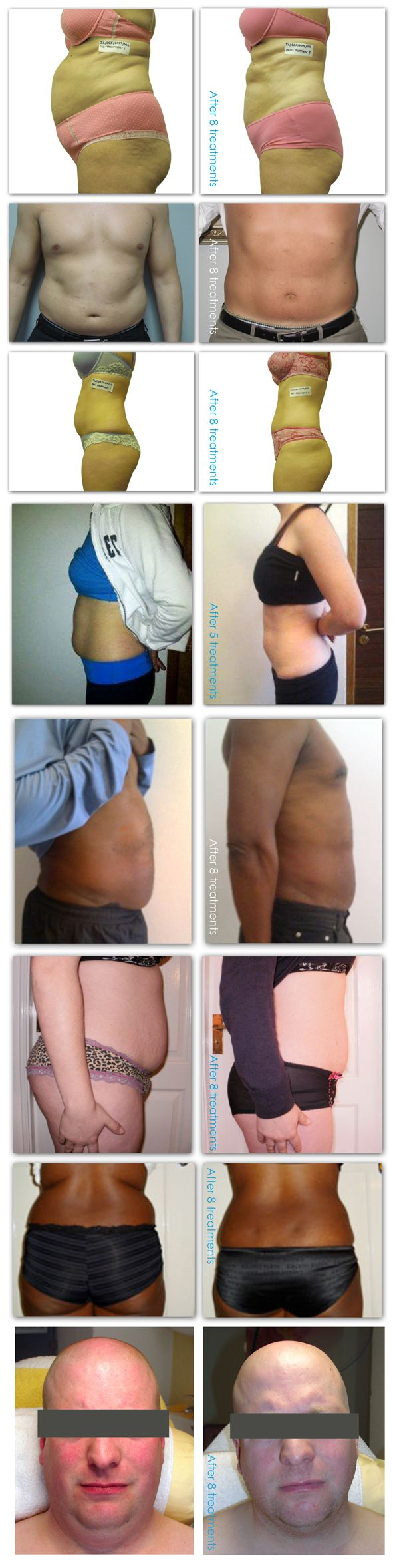 i Lipo Before and After Pictures