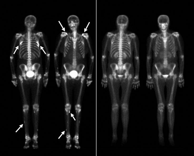 What does uptake mean in a bone scan  Answerscom