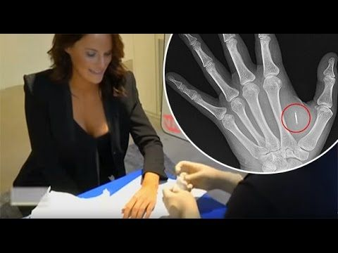 Companies Begin Tracking Employees With Microchip Implants