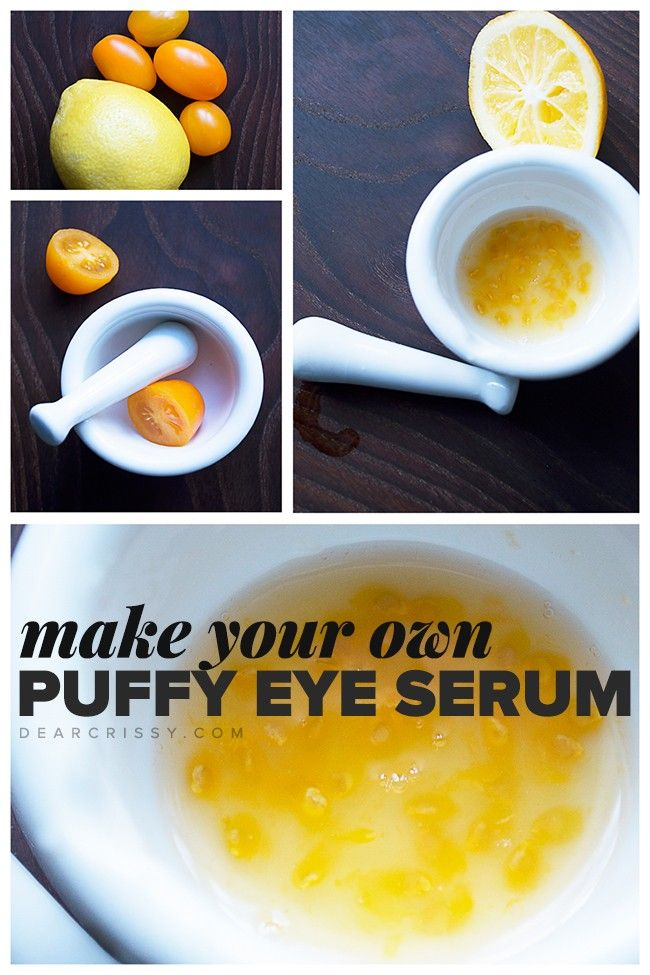 DIY Puffy Eye Serum - Soothe  and detox the delicate skin under your eyes with this easy homemade puffy eye serum. NO ONE likes under-eye bags and this all-natural serum helps you combat them with just two ingredients.