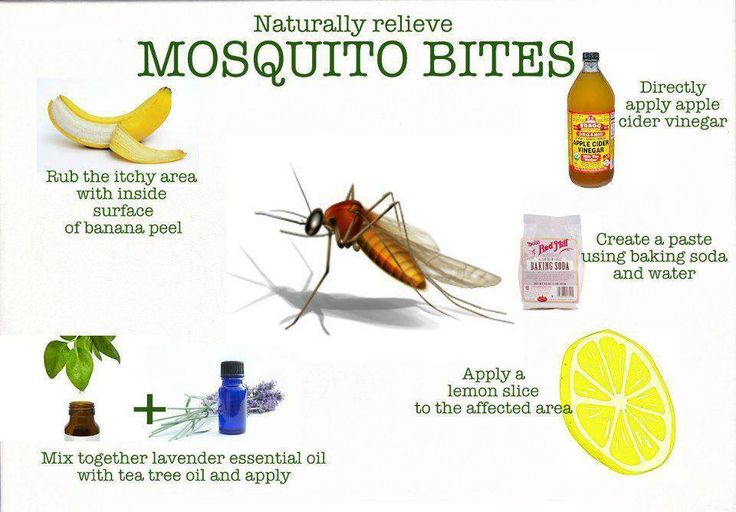 Stop those bites from itching OurWellnessRevolution.com