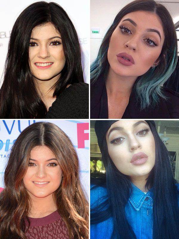 Kylie Jenner avant et après agrandissement des lèvres