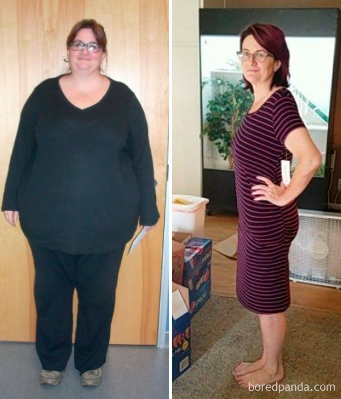 170 Pounds Gone Forever