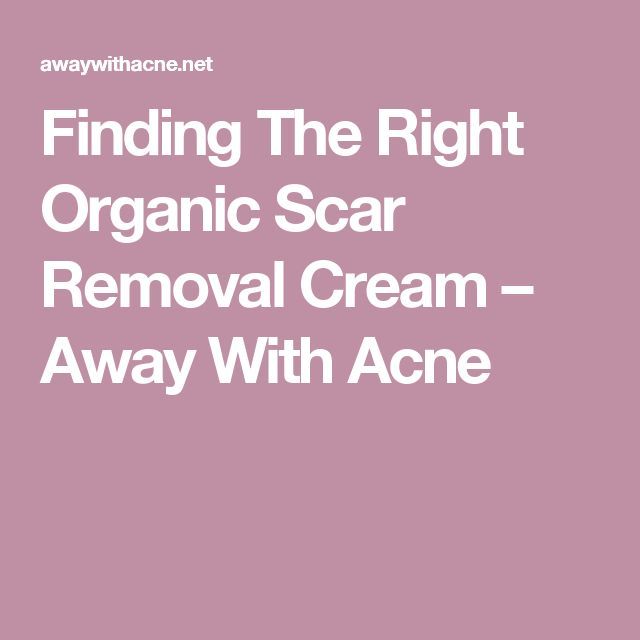 Finding The Right Organic Scar Removal Cream – Away With Acne