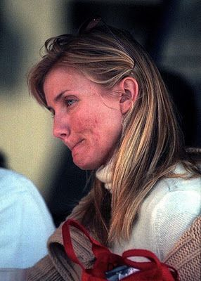 Cameron Diaz, yes celebs get acne just like everyone else - I looked like this in my 20's and early 30's.