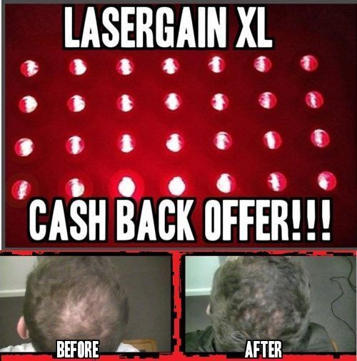 Laser Comb Hair Growth Loss Regrowth Treatment (28x More Power Than Others!) #Lasergain- Hair regrowth for him maybe fat loss for me?