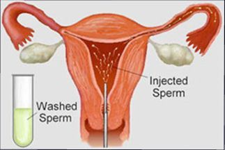 artificial insemination women procedure pictures - Google Search