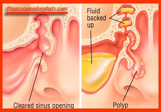 Polyps in Nose. Nasal Polyps Treatment – Effective Methods http://www.fitnessremediesdiets.com/nasal-polyps-treatment-nasal-polyps-treatment-miracle-ebook-reviews/