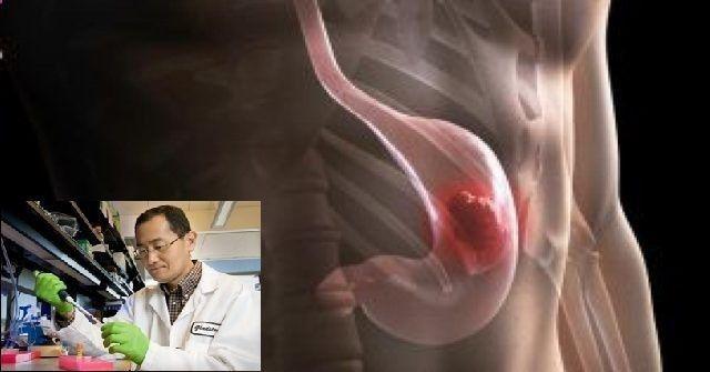 No te detengas y eliminas esta bacteria con los consejos de este médico japonés, esta bacteria se da en espiral, ubicada en la membrana del estomago. Anuncios La única bacteria que sobrevive en el medio ambiente del estómago, y no le afecta el ácido estomacal, produce inflamación y gastritis crónica. Doctor japonés revela cómo matar de …