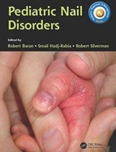 Pediatric nail disorders free download by Baran Robert; Hadj-Rabia Smail; Silverman Robert ISBN: 9781498720458 with BooksBob. Fast and free eBooks download.  The post Pediatric nail disorders Free Download appeared first on Booksbob.com.