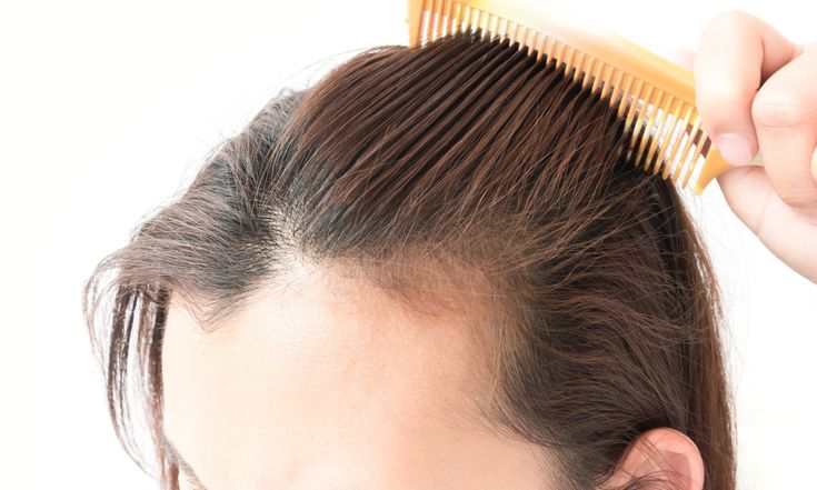 Causes, prevention and proper treatment of hair loss alopecia in women,The most common cause behind excessive hair loss of female is Alopecia. The main 3 factors are hormones, aging, and heredity determines alopecia. Generally, men are most commonly experienced baldness than women. Men ...  https://hairstylesbox.com/causes-prevention-and-proper-treatment-of-hair-loss-alopecia-in-women/ Hairstylesbox.COM #hair #hairtips #hairstyle #hairstyles #haircolor #hairdye #haircut