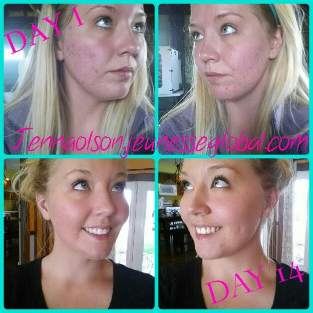 Jeunesse Skincare line works for antiaging and the wellness line is to die for. But my PERSONAL study shows that it also is a miracle on active acne and acne scarring! For more information please go to my website to get my contact information jennaolson.jeunesseglobal.com