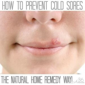 Cold Sores are a pain and unfortunately I have the tendency to get them quite often. Today I'm sharing how to prevent cold sores. This is a home remedy that really works, especially when you do it in the first stage of a cold sore. You know what they say… It is better to prevent than …