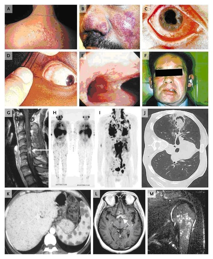 Sarcoidosis:  A)skin plaques; B) lupus pernio. C) uveitis ; D) enlarged, nodular lacrimal gland; E) endobronchial cobblestoning; F) ipsilateral peripheral CN VII and cranial-nerve involvement w/ hearing loss; G) spinal cord mass; H) lymph-node involvement on a gallium scan; I) hypermetabolism in the liver, spleen, and lymph nodes w/ 18F-fluorodeoxyglucose; J) aspergilloma; K) splenic masses; L) involvement of the optic chiasm (arrow); M) granulomatous involvement of the humerus