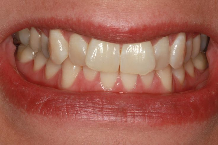 Invisalign vs Braces Cost Wow .. its amazing what you can find while searching out images for dentistry and more