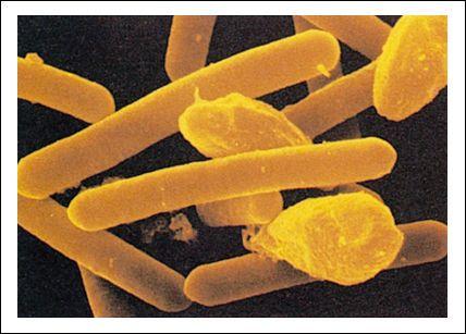 Nombre científico: Clostridium Botulinum
