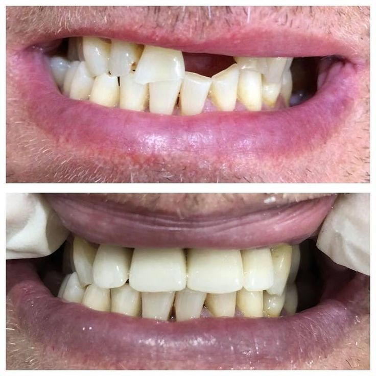 New smile for the groom before his wedding this month   One Implant and three Porcelain Crowns were used in his treatment
