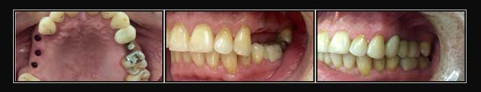 Missing teeth replaced with Dental Implants & metal free Crowns.