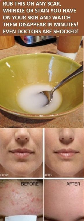 Creams to Remove Face Stains - The fundamental element of this extraordinary arrangement is nectar, a sweet characteristic nectar created by honey bees which will advance stream in your skin and enhance your skin other than the … - Homemade creams to remove face stains