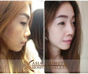 #nose #Surgery #singapore Envious of Korean pop stars and aspiring to look like one? Well, you're not alone. Nowadays, nose surgery in Singapore is rather common, and cosmetic advancements have greatly improved the safety and effectiveness of a nose job. Still, any procedure that requires you to go under the knife takes careful consideration, so these are some serious pointers to note before opting for one locally. Which […]