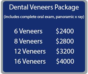 #Dental_Veneers are ideal for creating beautiful smiles in cases of small, oddly shaped, spaced or discolored teeth. Dental veneers are custom-made shells of tooth-colored materials designed to cover the front surface of teeth to improve the  appearance. Know the benefits you can get. Talk to us!