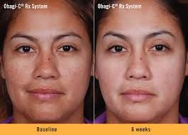 Amazing results from the Oabgi CRx system